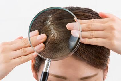 頭皮がかゆい!原因と対策方法